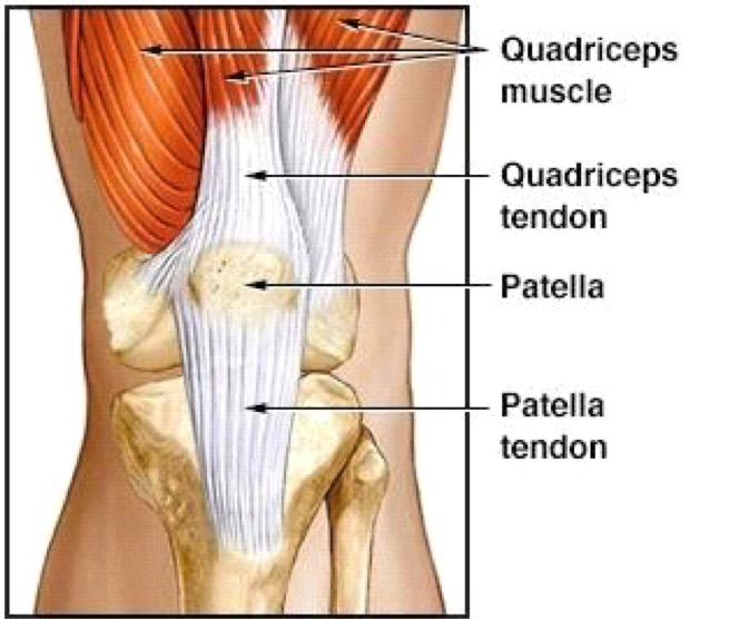 Patella Tendon Tear Everything You Need To Know About Treating Them
