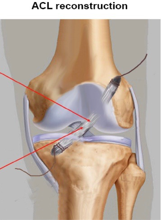 acl tear The anterior cruciate ligament (acl) is an important structure in maintaining the normal biomechanics of the knee and is the most commonly injured knee.