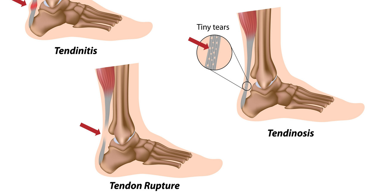 3 Signs of an Achilles Tendon Injury