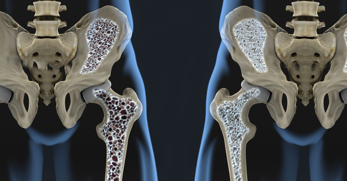 How Osteoporosis Affects The Bones Of The Hip Total