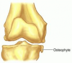 bone spur knee
